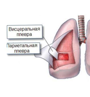 Tulehdus Keuhkoissa